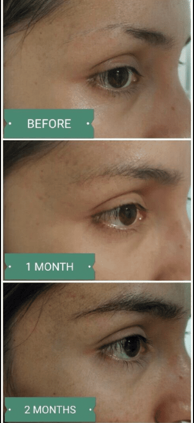 How to Make Eyebrows Thicker