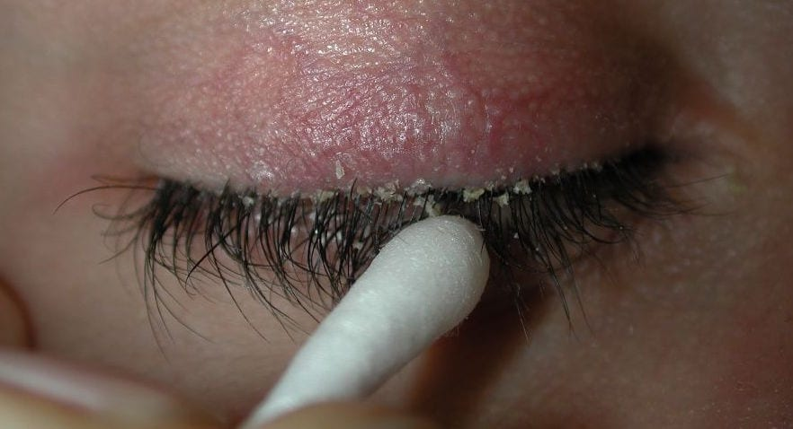How To Get Rid Of Eyelash Dandruff 9 Most Effective Solutions