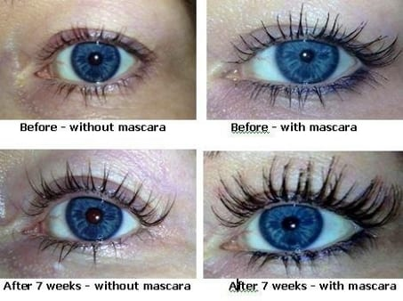 2e90c449a1e Find the Best Eyelash Growth Serums: Compare Reviews